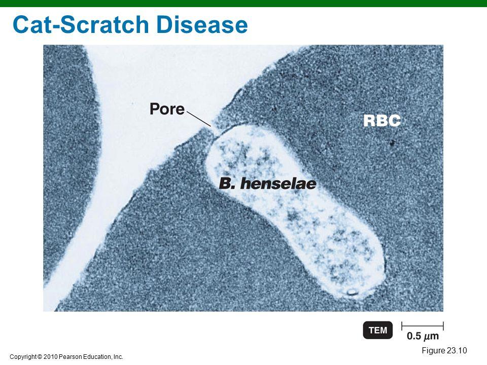 Cat-Scratch Disease Figure 23.10