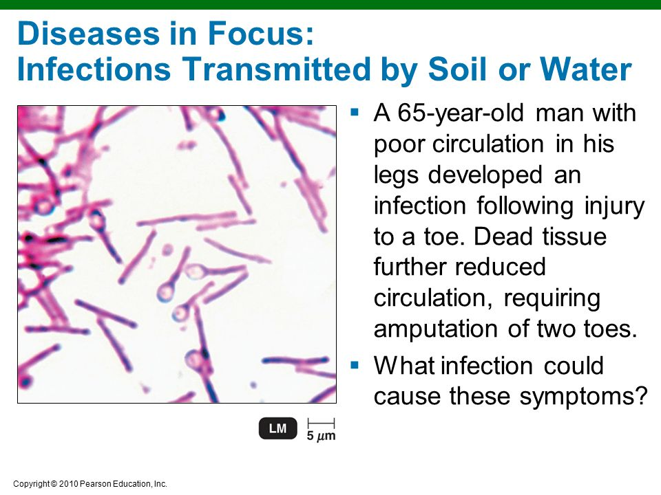Diseases in Focus: Infections Transmitted by Soil or Water