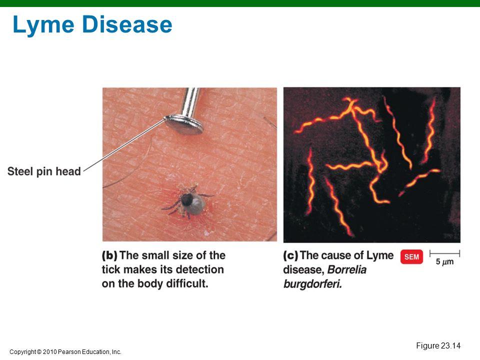 Lyme Disease Figure 23.14