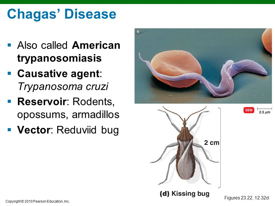 Chagas' Disease Also called American trypanosomiasis