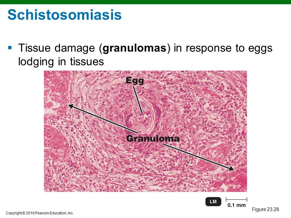 Schistosomiasis Tissue damage (granulomas) in response to eggs lodging in tissues Figure 23.28