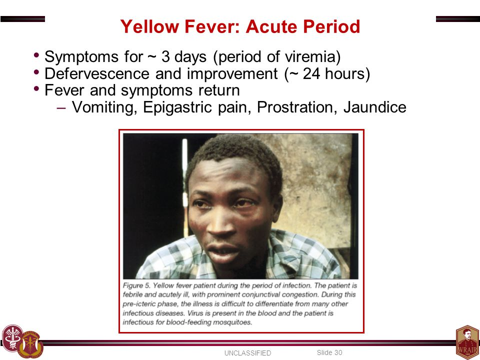 Yellow Fever: Acute Period