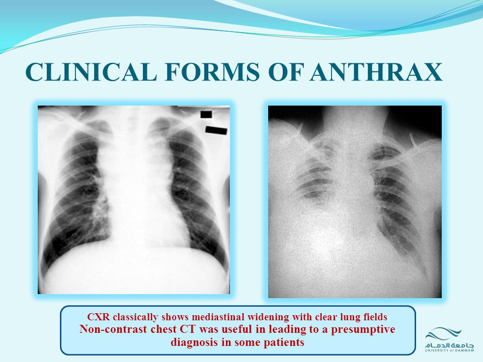 CLINICAL FORMS OF ANTHRAX