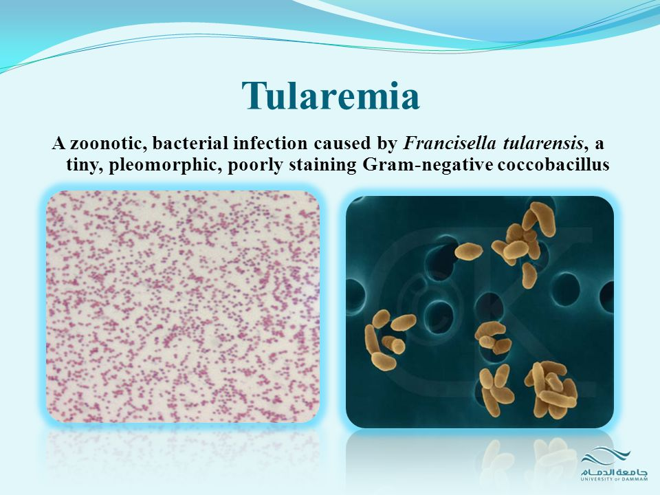 Tularemia A zoonotic, bacterial infection caused by Francisella tularensis, a tiny, pleomorphic, poorly staining Gram-negative coccobacillus.