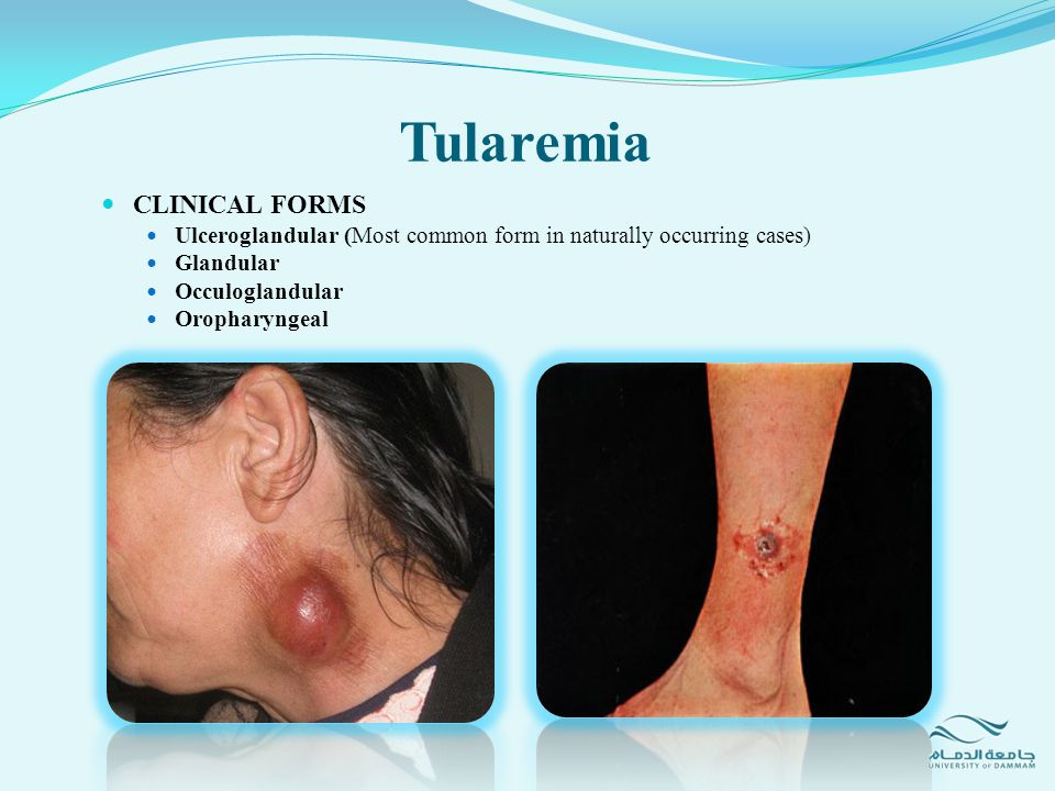 Tularemia CLINICAL FORMS