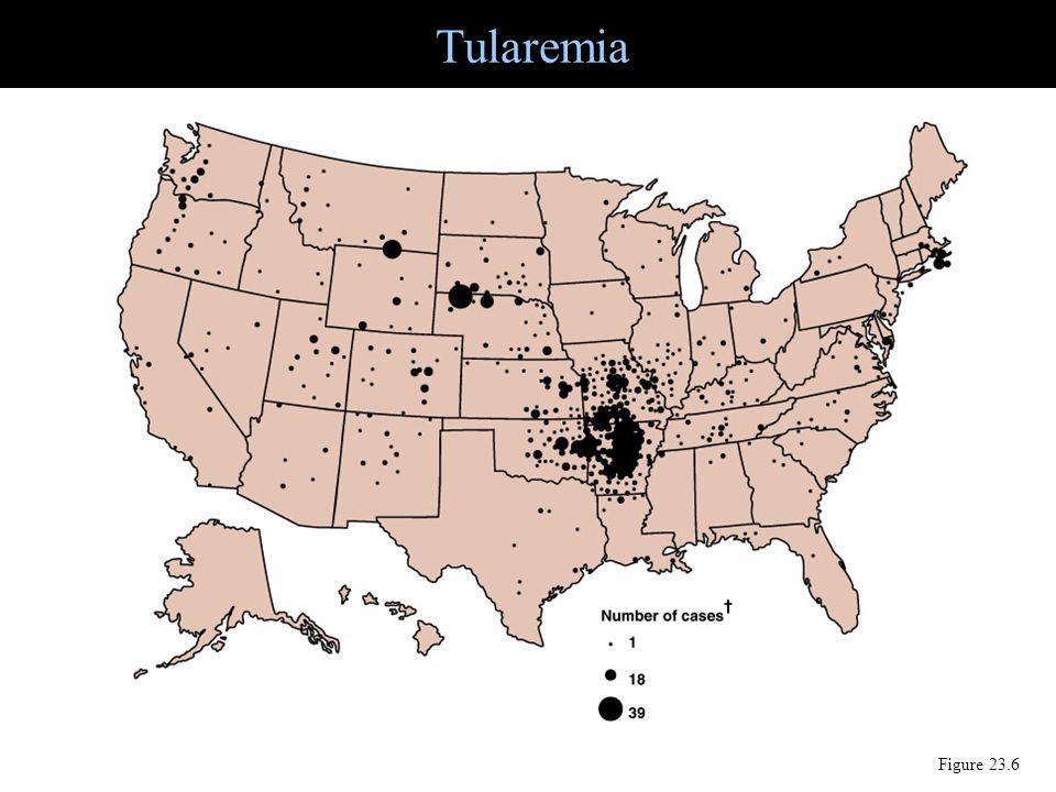 Tularemia Figure 23.6