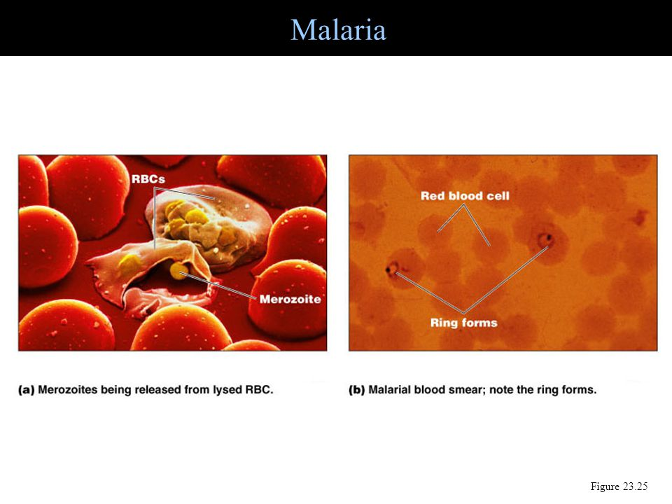 Malaria Figure 23.25