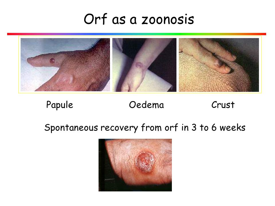 Orf as a zoonosis Papule Oedema Crust