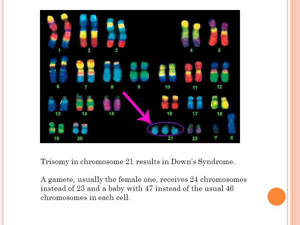 Trisomy in chromosome 21 results in Down's Syndrome.