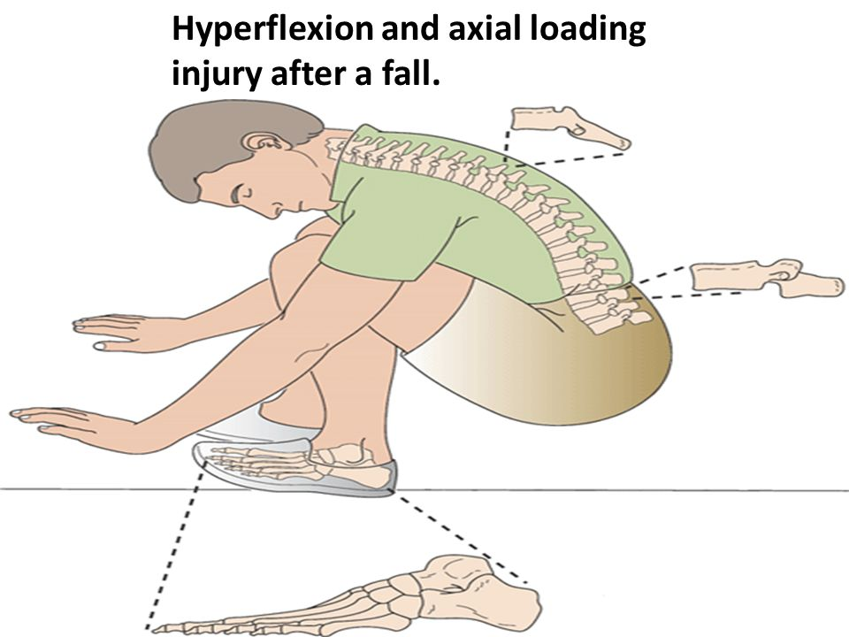 Hyperflexion and axial loading injury after a fall.