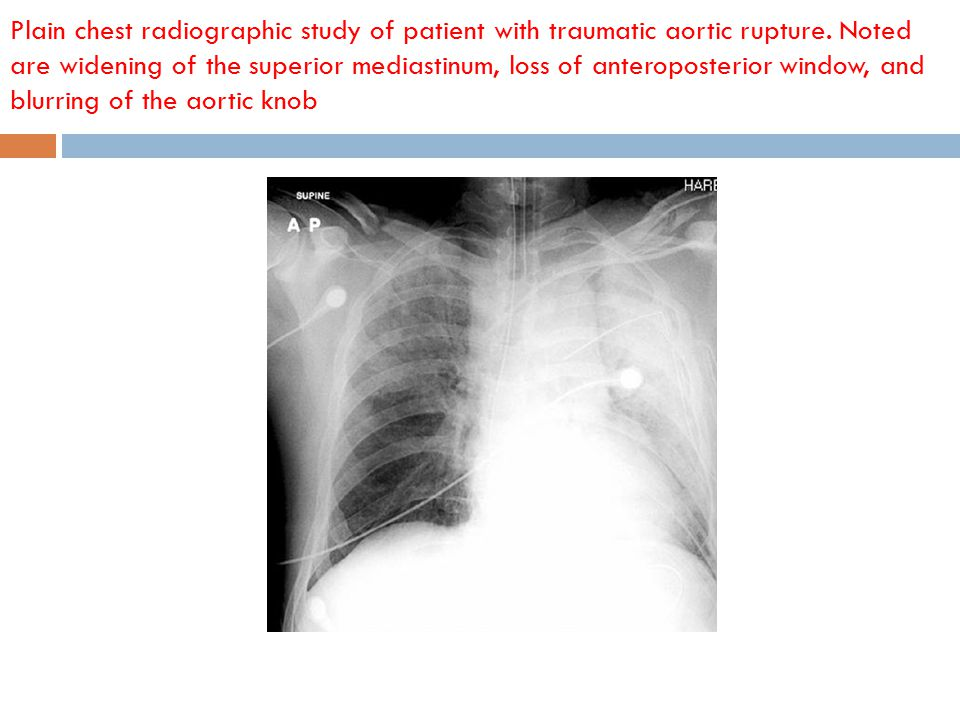 Plain chest radiographic study of patient with traumatic aortic rupture.