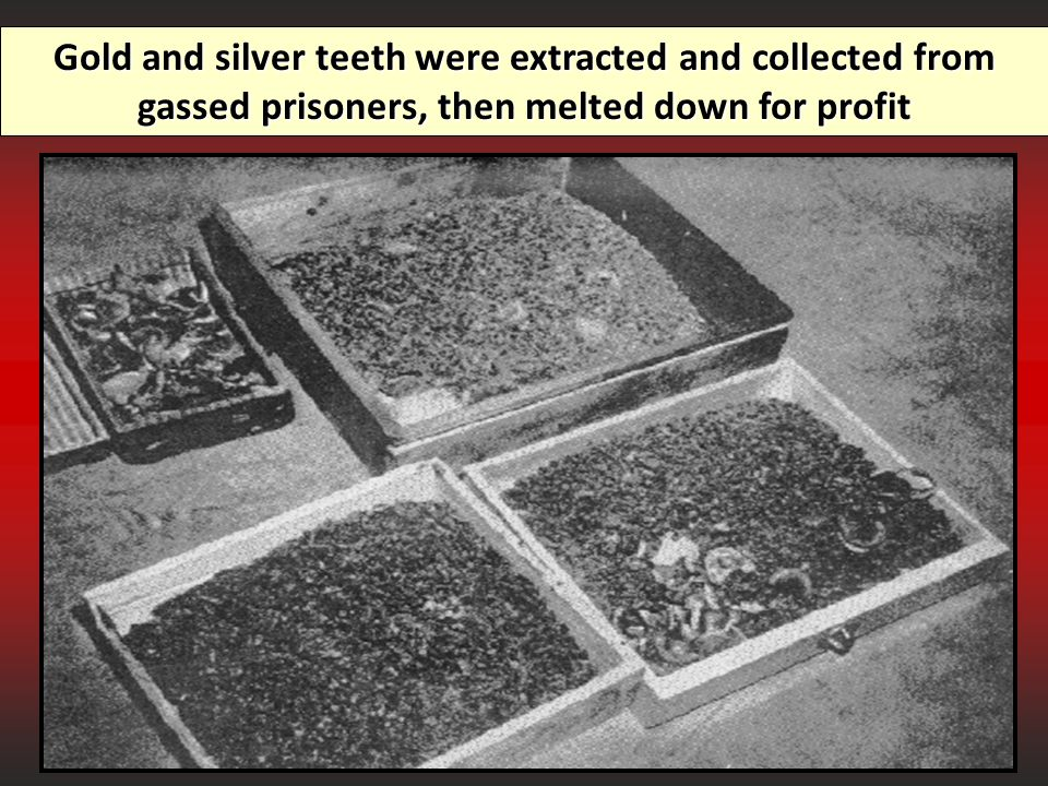 Gold and silver teeth were extracted and collected from gassed prisoners, then melted down for profit