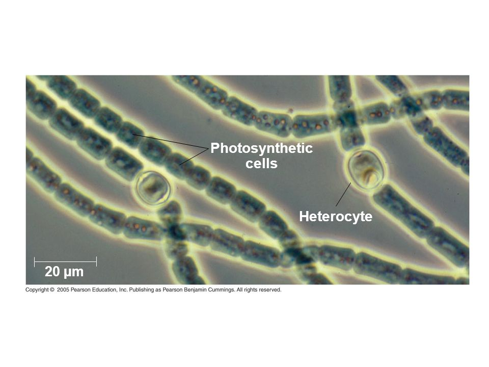 Photosynthetic cells Heterocyte 20 µm