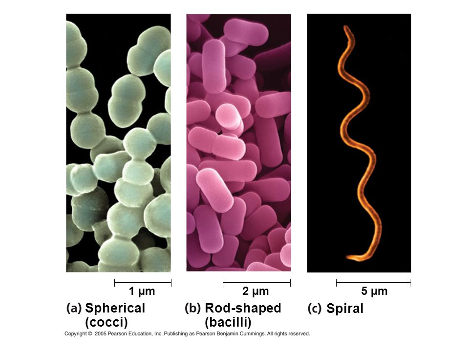 1 µm 2 µm 5 µm Spherical (cocci) Rod-shaped (bacilli) Spiral