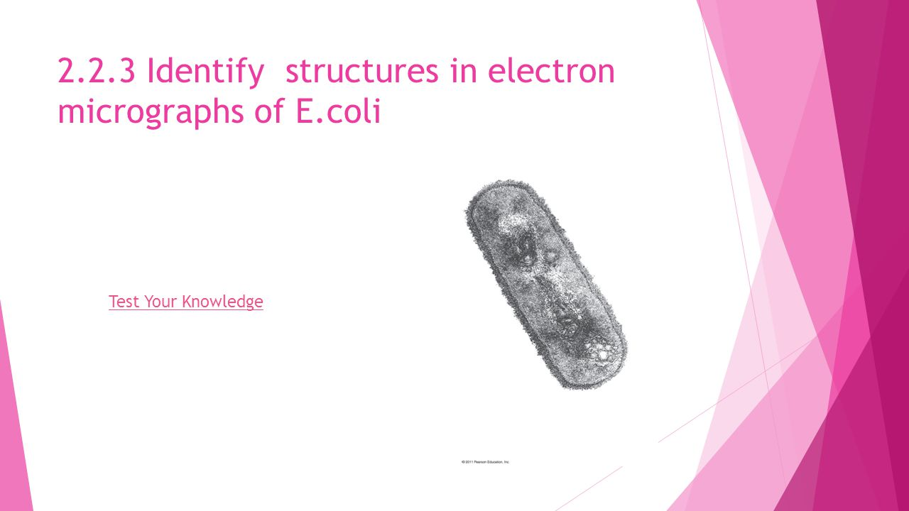 2.2.3 Identify structures in electron micrographs of E.coli