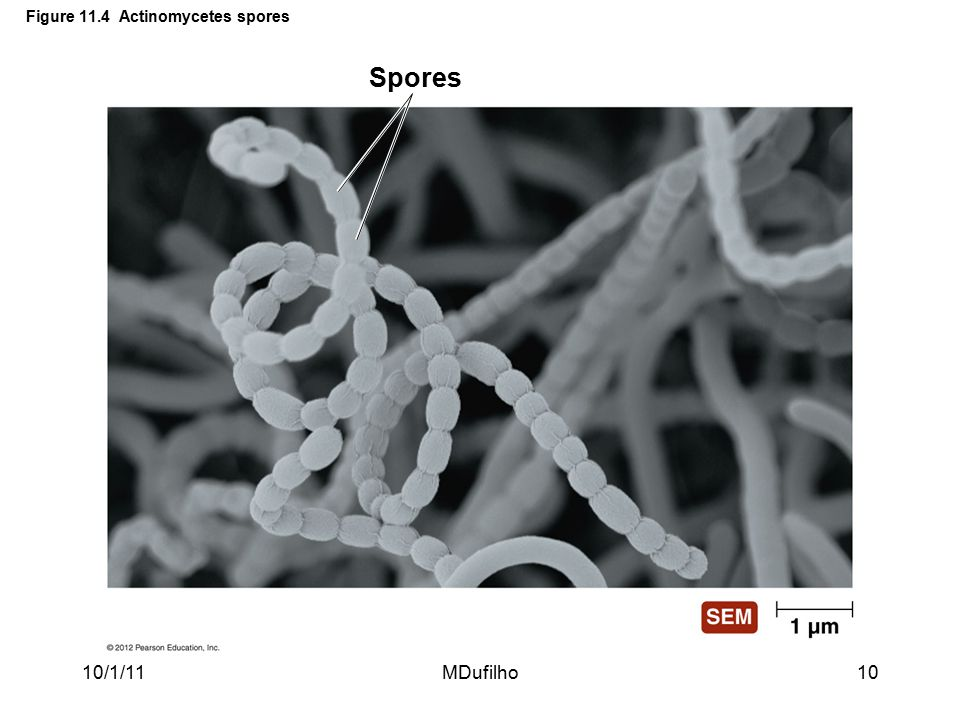 Figure 11.4 Actinomycetes spores