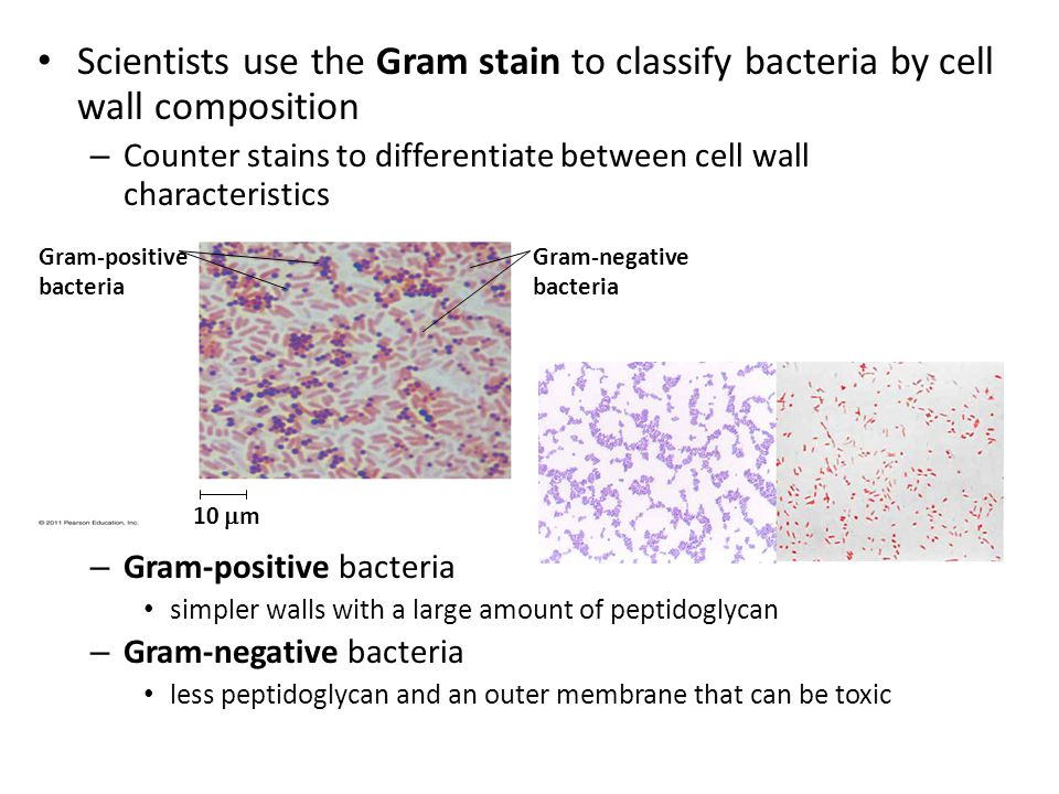 Scientists use the Gram stain to classify bacteria by cell wall composition