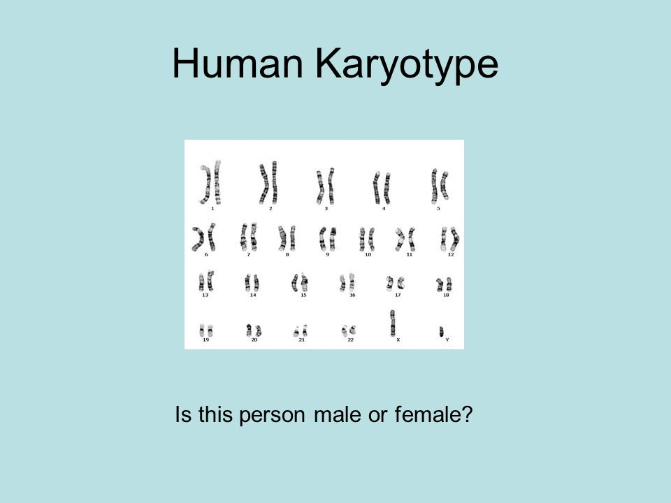 Human Karyotype Is this person male or female