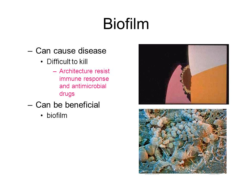 Biofilm Can cause disease Can be beneficial Difficult to kill biofilm