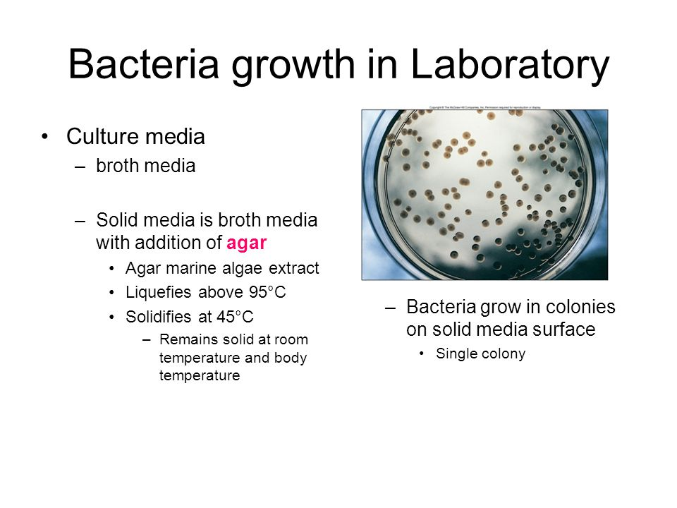 Bacteria growth in Laboratory