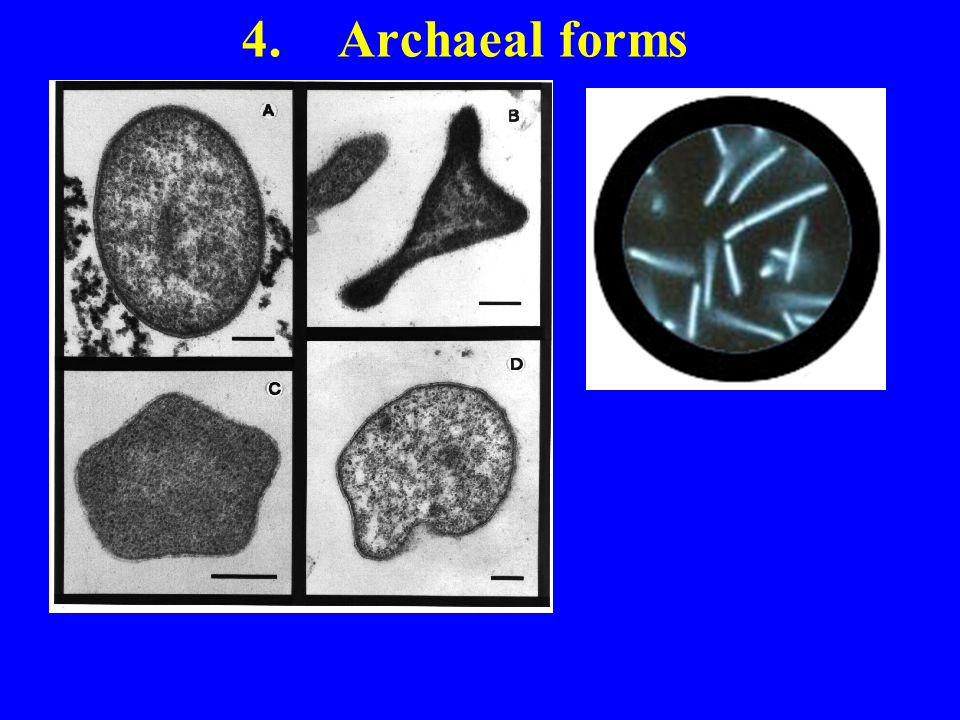 4. Archaeal forms