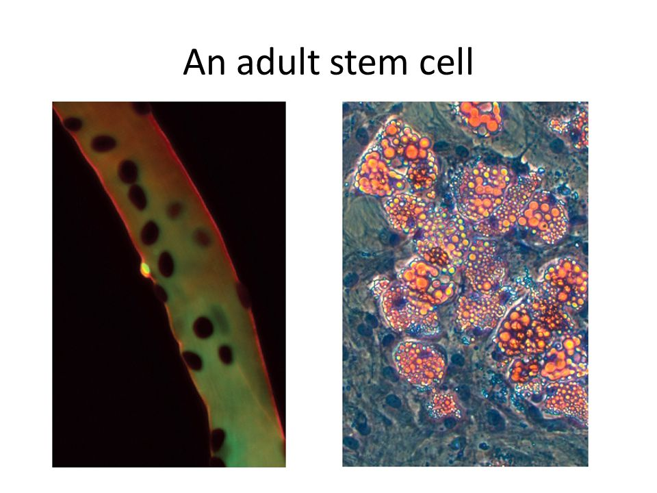 An adult stem cell