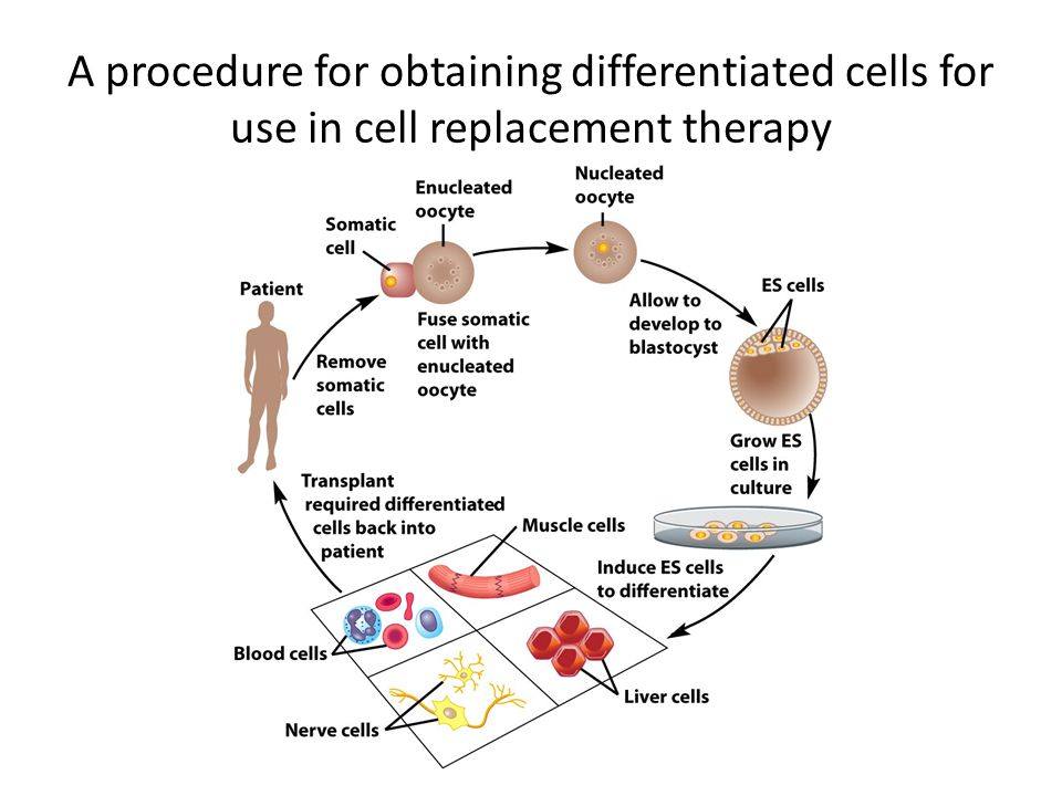 A procedure for obtaining differentiated cells for use in cell replacement therapy