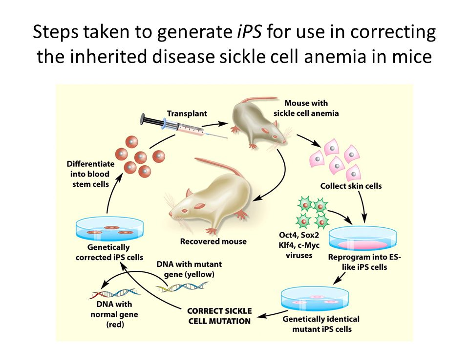 Steps taken to generate iPS for use in correcting the inherited disease sickle cell anemia in mice