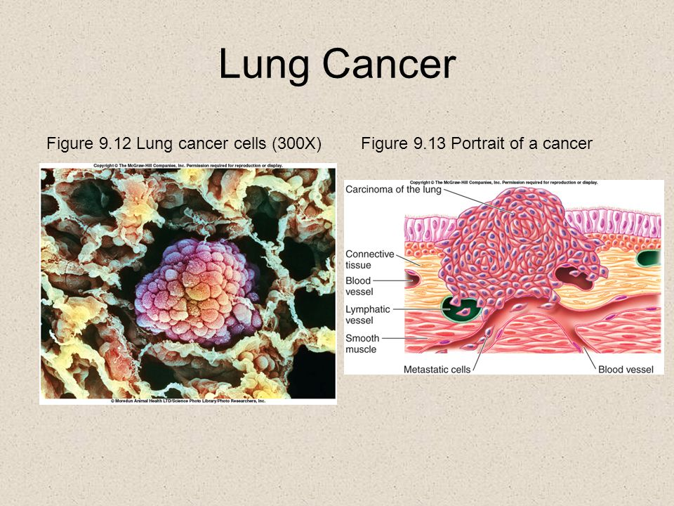 Lung Cancer Figure 9.12 Lung cancer cells (300X)