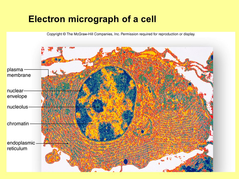 Electron micrograph of a cell