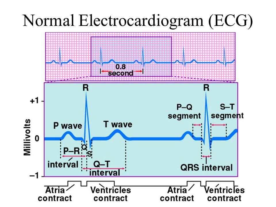 Normal Electrocardiogram (ECG)