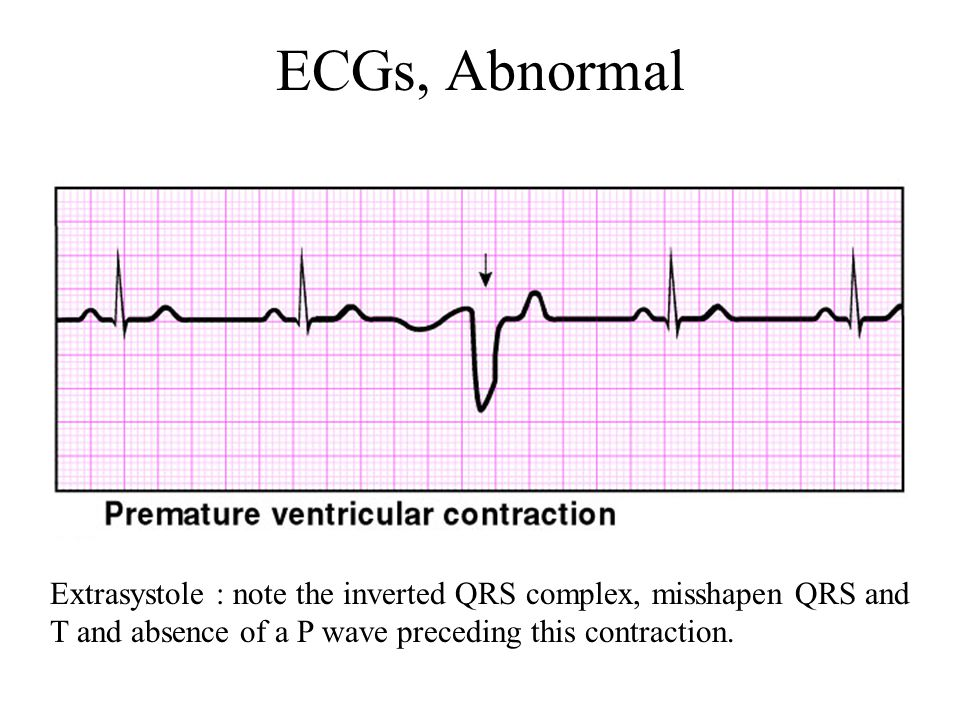ECGs, Abnormal Extrasystole : note the inverted QRS complex, misshapen QRS and T and absence of a P wave preceding this contraction.