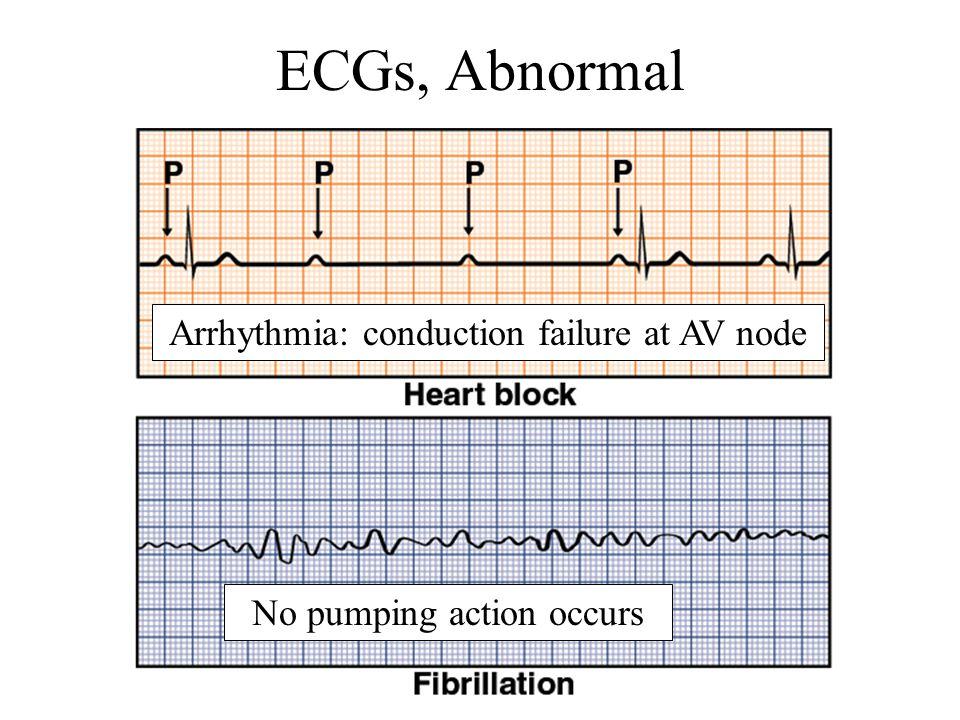 ECGs, Abnormal Arrhythmia: conduction failure at AV node