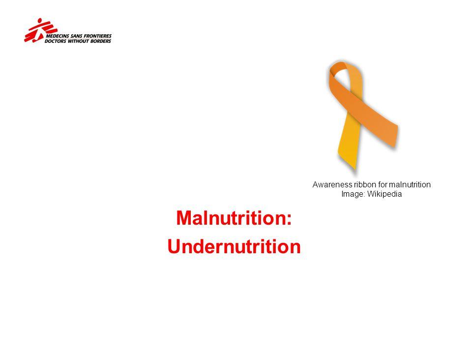 Malnutrition: Undernutrition