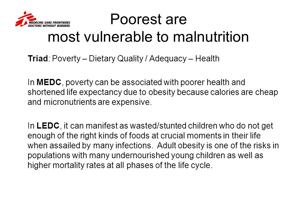 Poorest are most vulnerable to malnutrition
