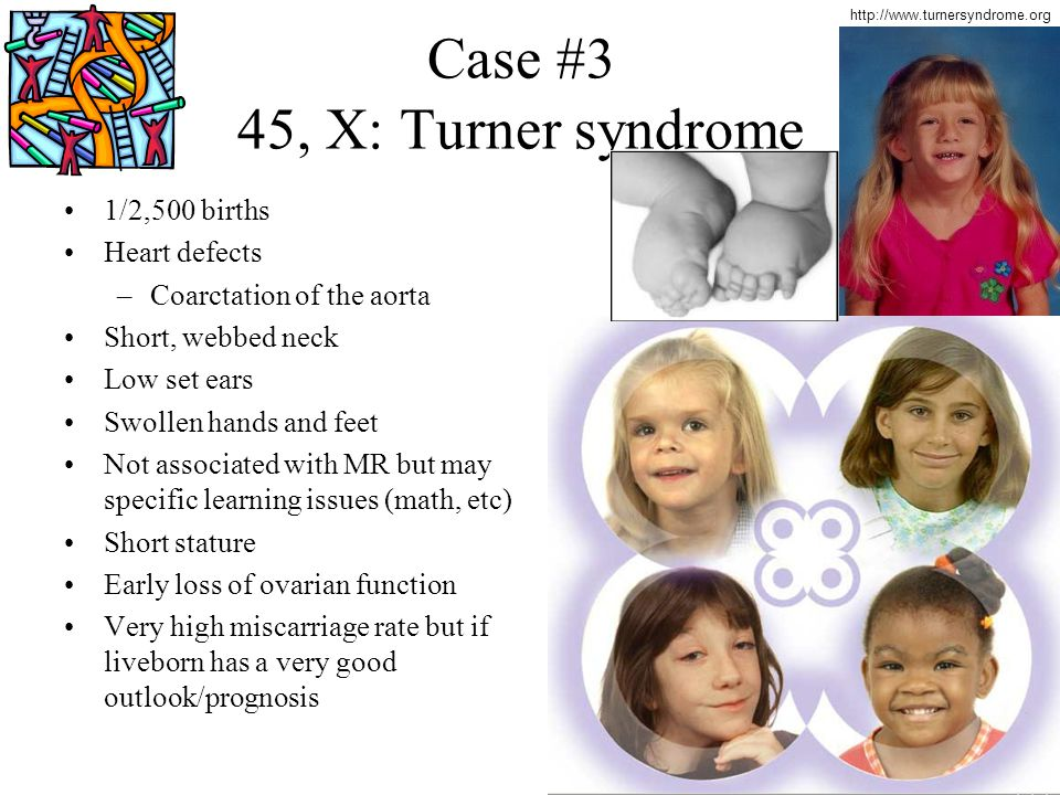 Case #3 45, X: Turner syndrome