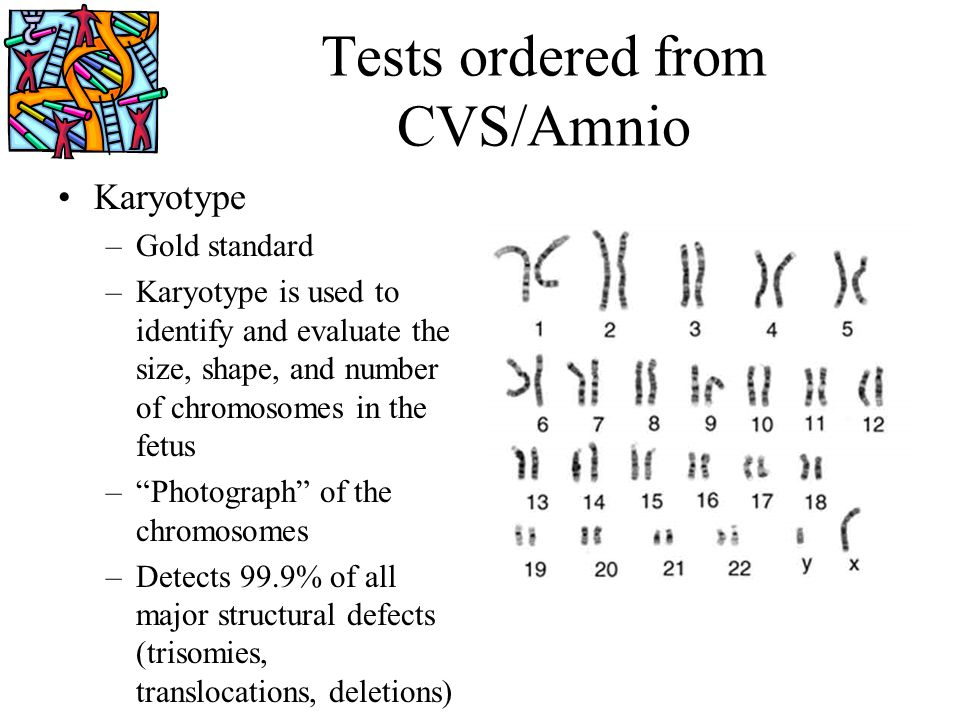 Tests ordered from CVS/Amnio