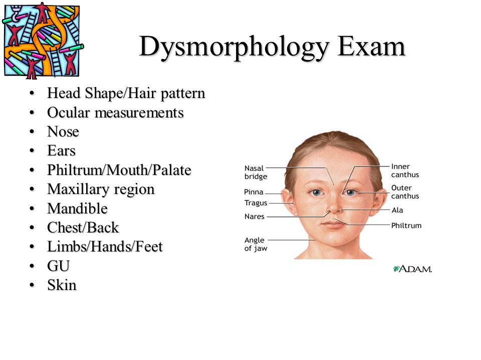 Dysmorphology Exam Head Shape/Hair pattern Ocular measurements Nose