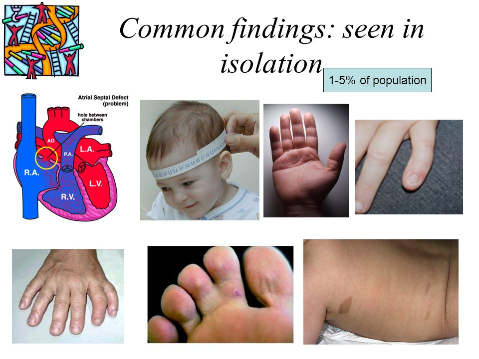 Common findings: seen in isolation