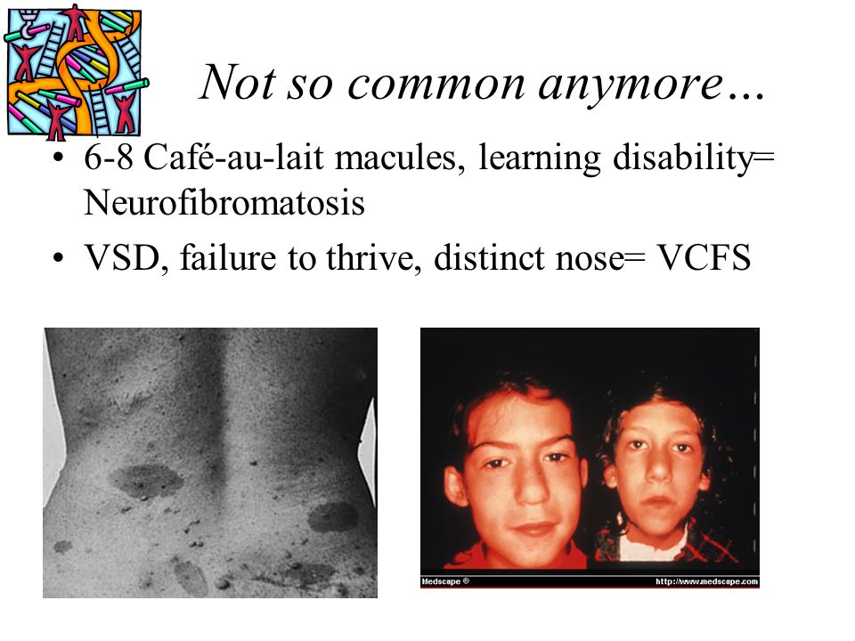 Not so common anymore… 6-8 Café-au-lait macules, learning disability= Neurofibromatosis.