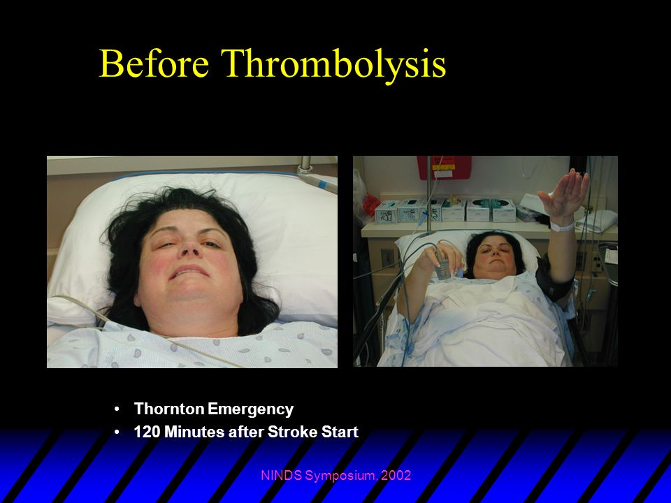 Before Thrombolysis Thornton Emergency 120 Minutes after Stroke Start