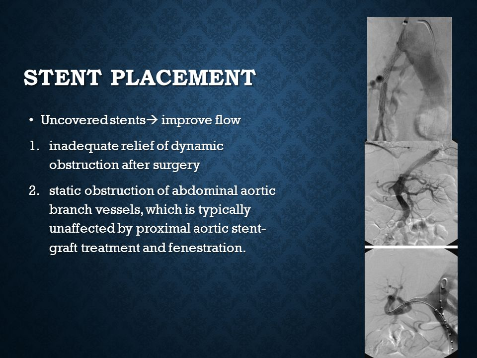Stent placement Uncovered stents improve flow