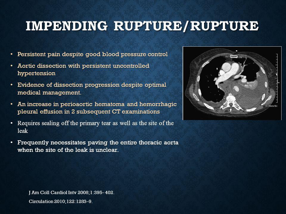 impending rupture/Rupture