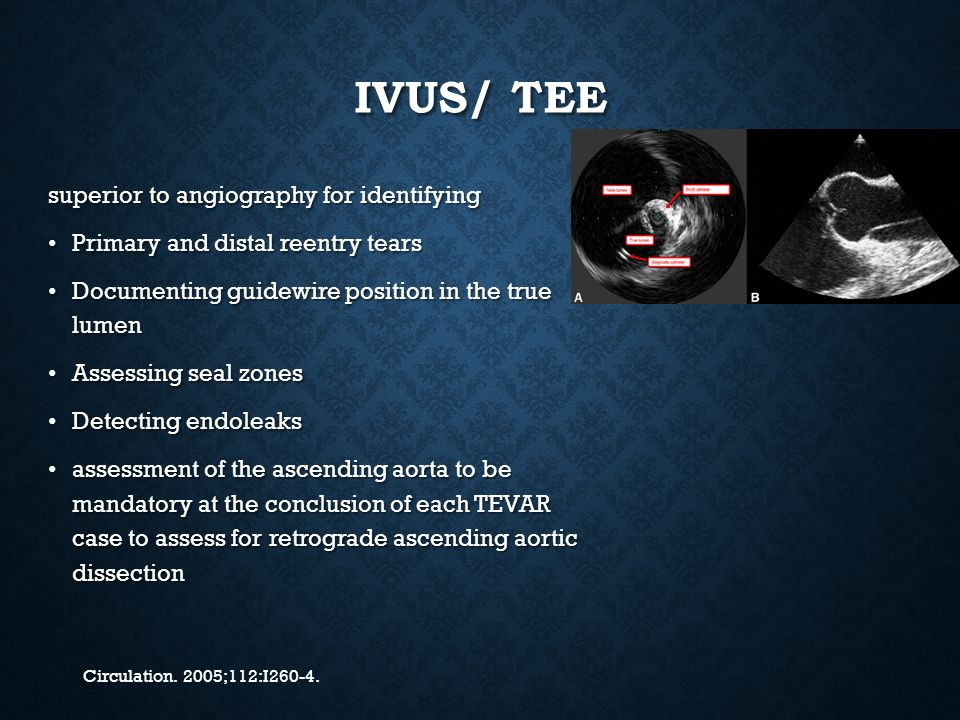 IVUS/ TEE superior to angiography for identifying