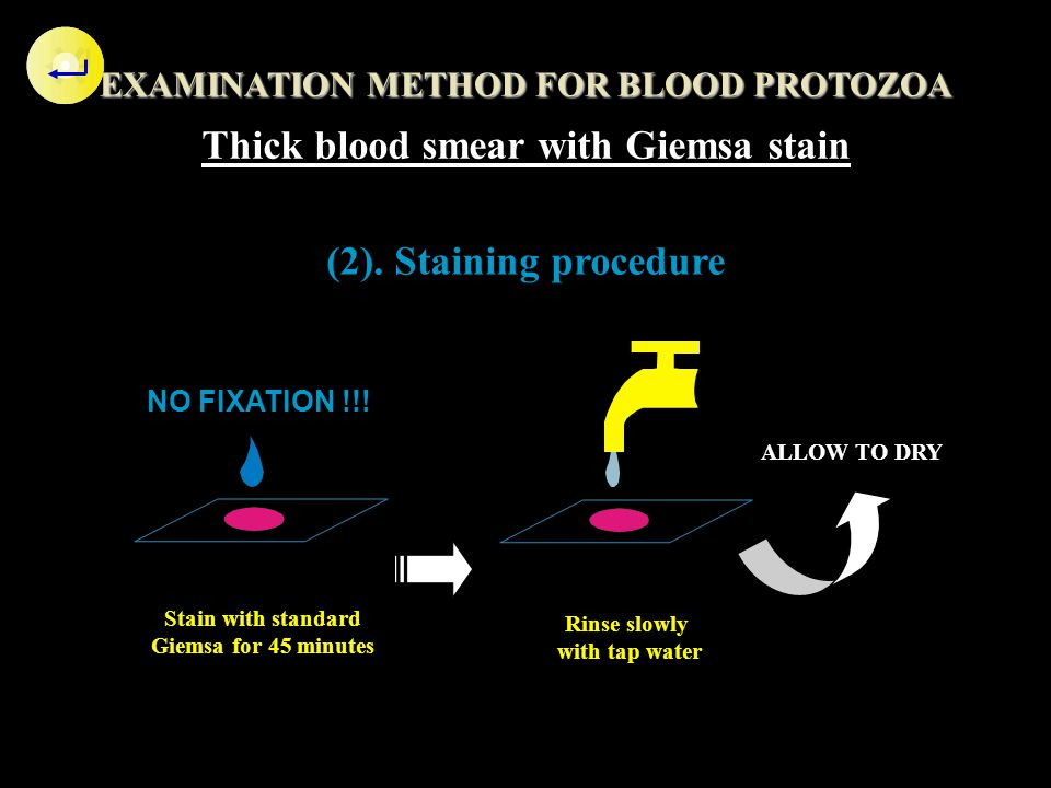 Thick blood smear with Giemsa stain