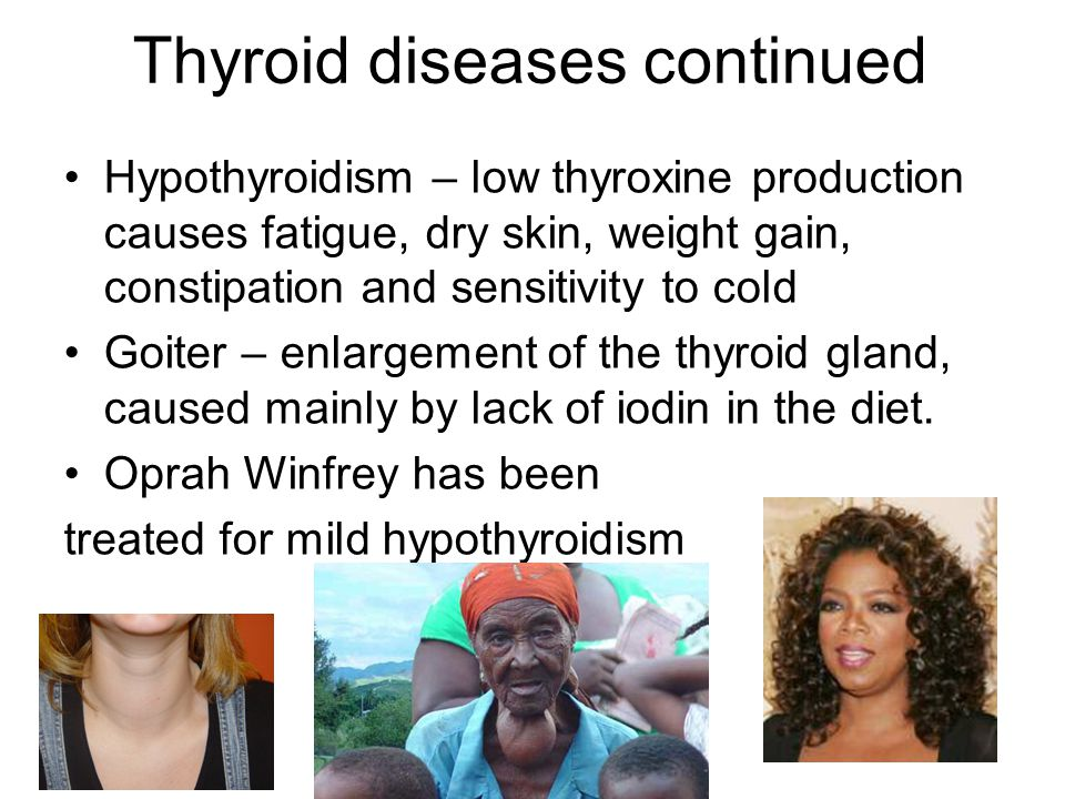 Thyroid diseases continued