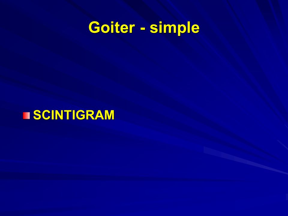 Goiter - simple SCINTIGRAM