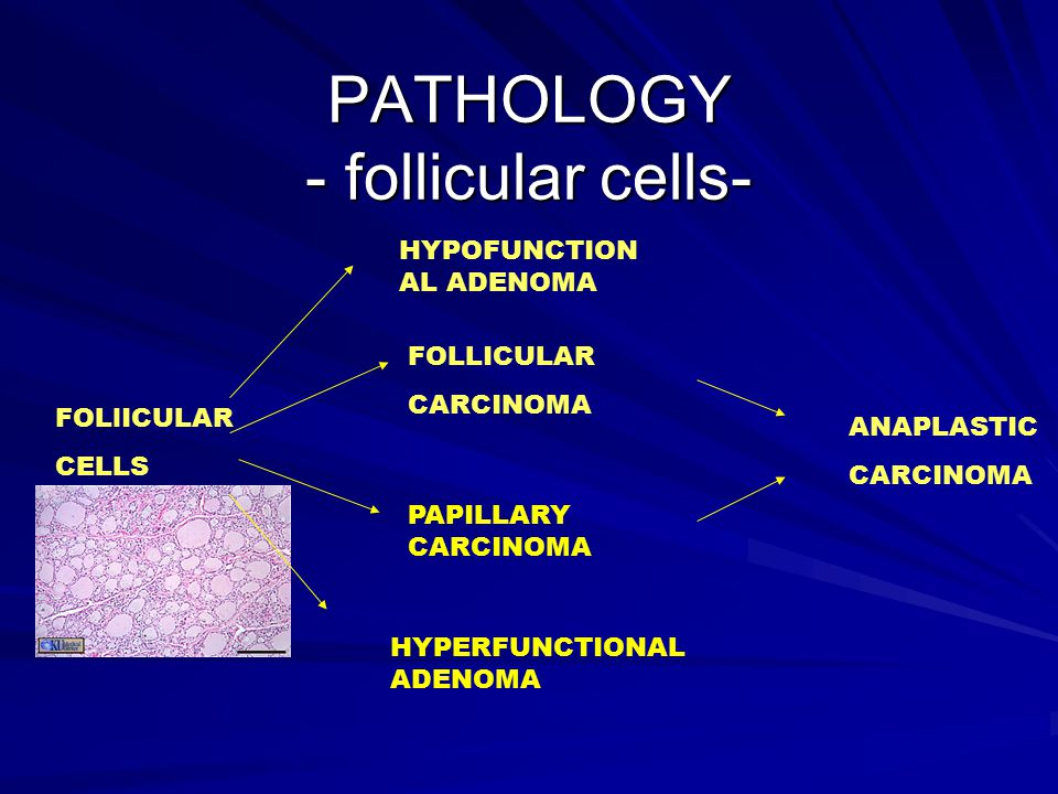 PATHOLOGY - follicular cells-