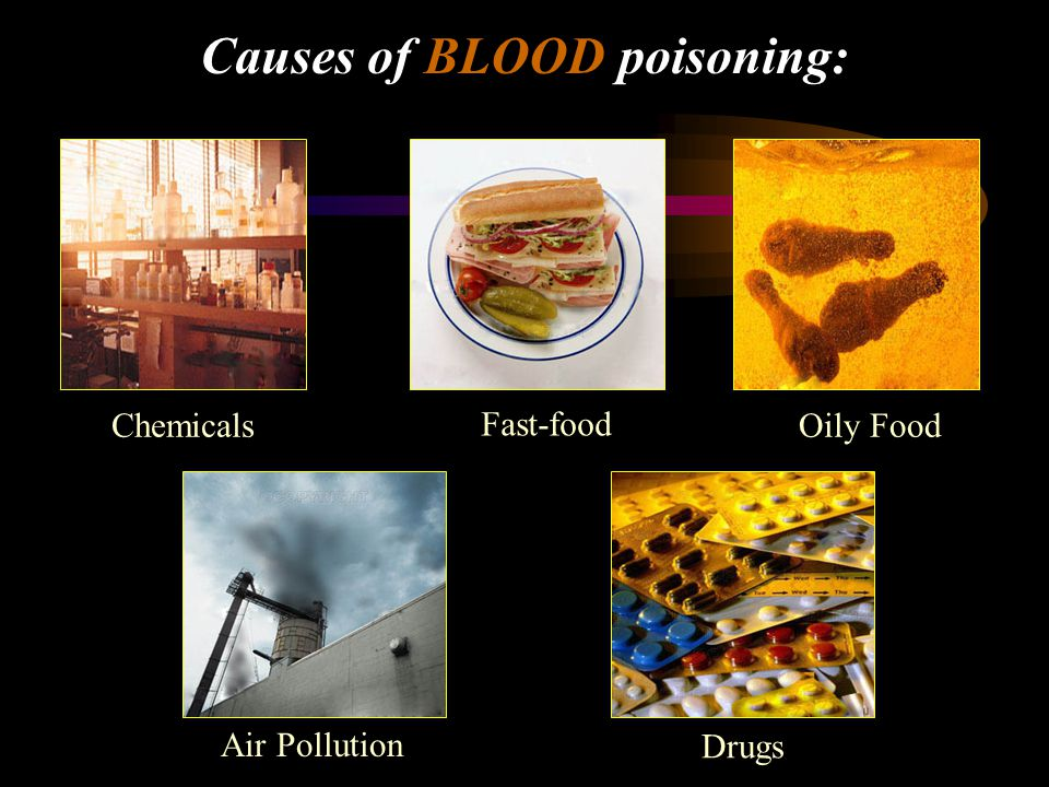 Causes of BLOOD poisoning: