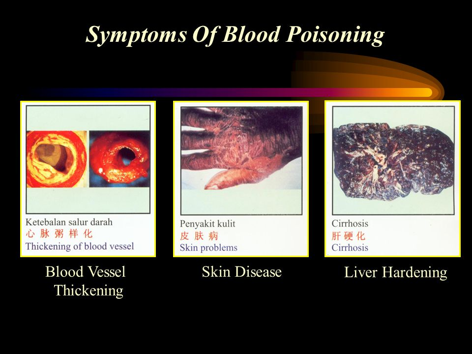 Symptoms Of Blood Poisoning
